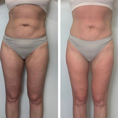 Before and after Radio Frequency Skin Tightening