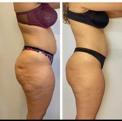 Lower Body Makeover Pkg 5 Sessions