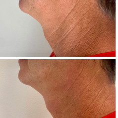 Radio frequency skin tightening 1 session