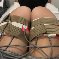Laser Lipo thighs