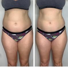 Laser Lipo Stomach 1 Session