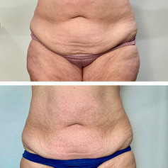 Rf skin Tightening and Body Contour Combo