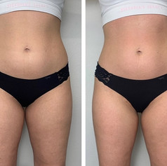 Body contour 1 session Stomach