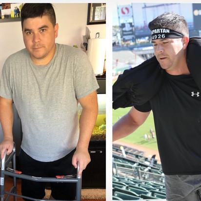 Thomas, 37, Multi-Level Lumbar Fusion