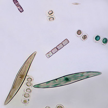Freshwater and Marine Diatoms, w.m. Microscope Slide