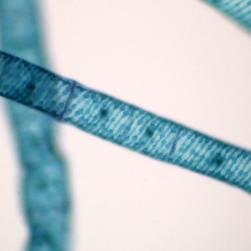 Spirogyra with Multiple Chloroplasts Slide