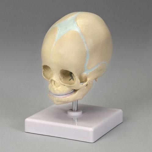 Altay Fetal Skull