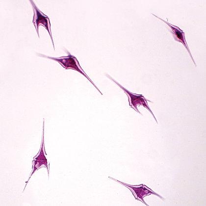 Dinoflagellates Slide