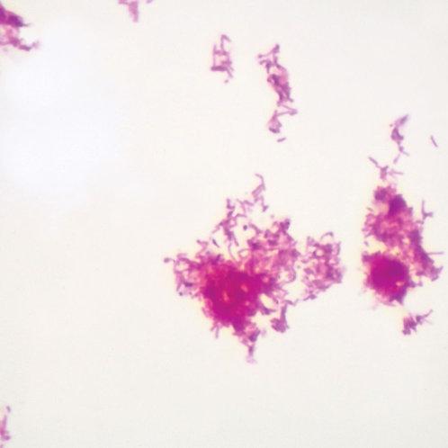 Acid Fast Stain, Microscope Slide