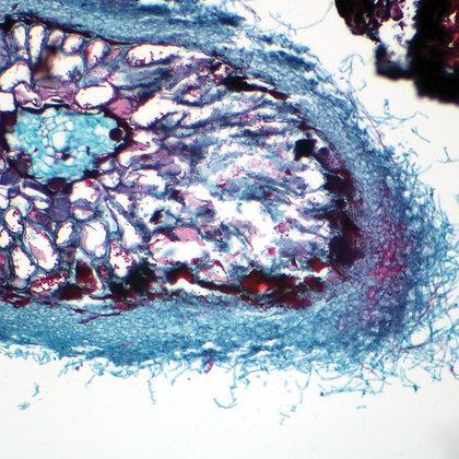 Ectotrophic Mycorrhiza Microscope Slide