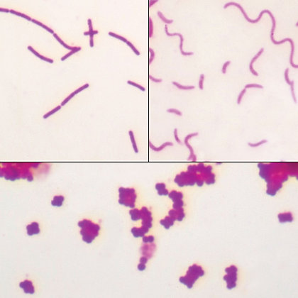 Bacteria Types Slide, Separate Smears, Carbol-Fuchsin