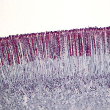 Cup Fungus Apothecium, 12 µm Microscope Slide