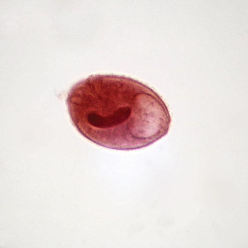 Balantidium coli Trophozoites, smear Microscope Slide