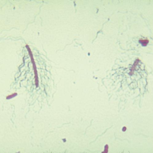 Bacterial Flagella Slide, Peritrichous