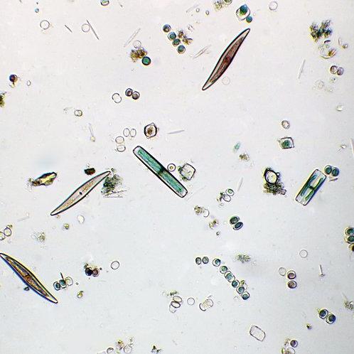 Marine Diatoms Slide