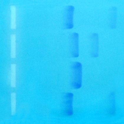 Bulk Victim DNA, per mL