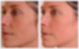 Anti-aging face laser resurfacing Alabama