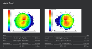 Clarifye corneal topographer