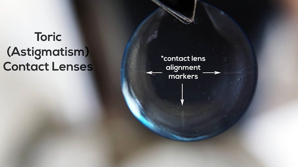 Soft toric (astigmatism) contact lenses have special alignment markers