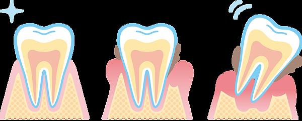 歯周病進行.png