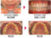 price_orthodontic01.jpg