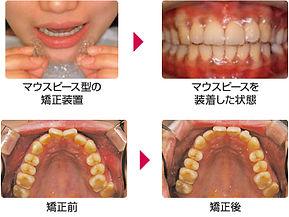 price_orthodontic01.jpg