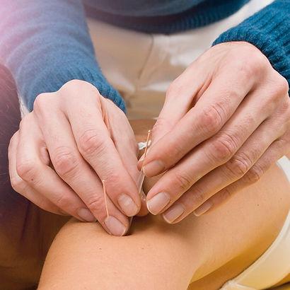 Akupunktur, Laserakupunktur