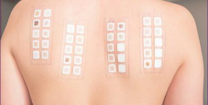 Teste alérgico de contato