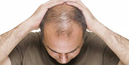 Calvície e outras alterações do cabelo