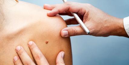 Prevenção de câncer de pele