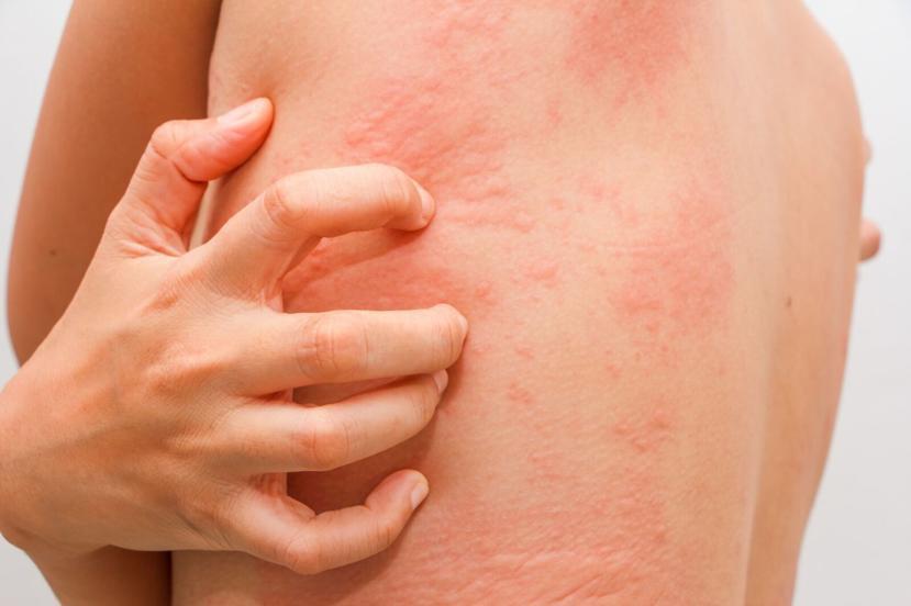 Alergias, dermatite de contato, dermatite atópica, urticária