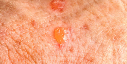 Lesões pré-cancerígenas