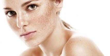 Manchas, melasma, vitiligo