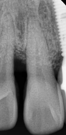 Periodontal Defect