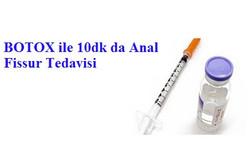 Anal Fissur Tedavisi