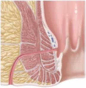ameliyatlar, obezite ameliyati ankara, reflü tedavisi,anal fissür tedavisi, kil dönmesi ameliyati, makat çatlagi ameliyatsiz tedavisi, mikrosinüsektomi