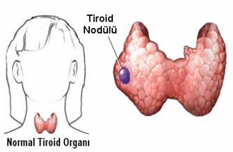 Tiroid Kanseri Cerrahisi