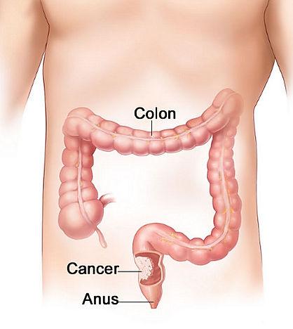 ameliyatlar, hastalik tedavileri, obezite ameliyati ankara, reflü tedavisi,anal fissür tedavisi, kil dönmesi tedavisi, makat çatlagi ameliyatsiz tedavisi