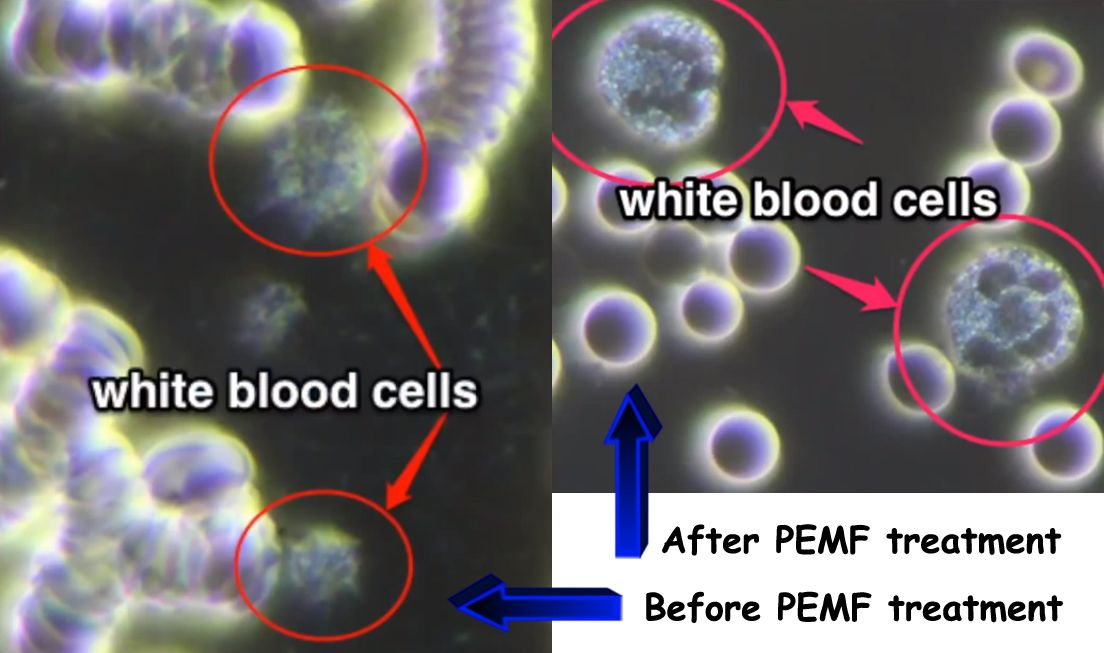 Before and after blood PEMF