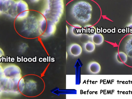Red Blood Cells Respond to Pulsed Electro Magnetic Fields (PEMF)