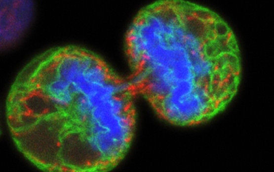 2014_02)02_mitosis-human_cells_wellcome.