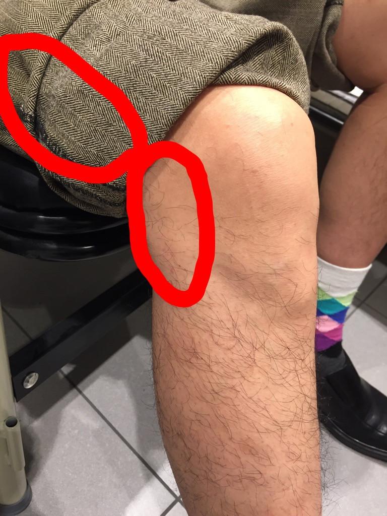 Knee pain location