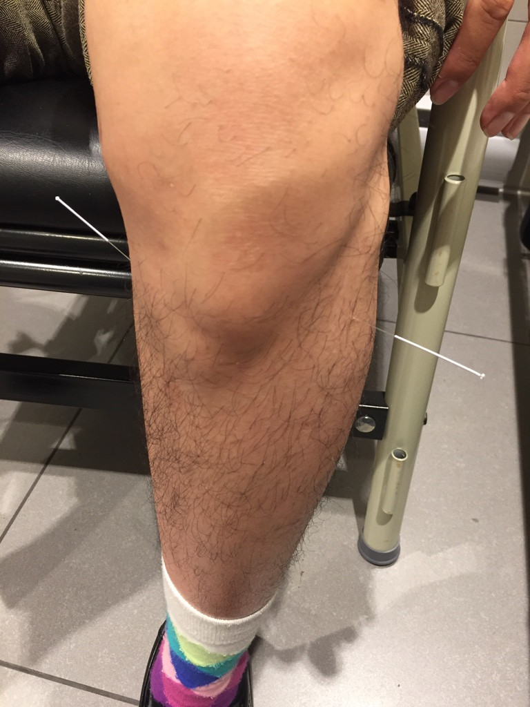 Acupuncture Left Leg