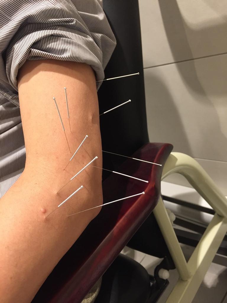 Acupuncture Left Arm