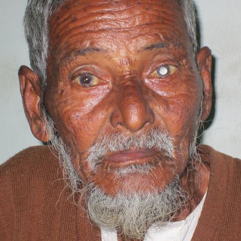 Blindness in the older generation