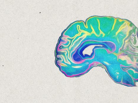 Dessin d'une coupe latérale d'un cerveau, encre et pastels.