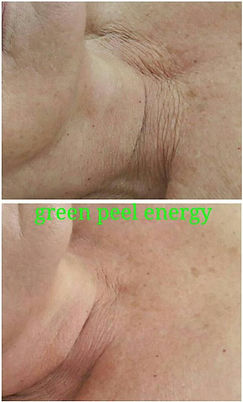 neck Energy.jpg