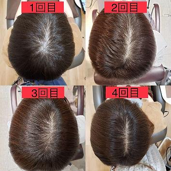 強髪ヘッドスパの経過観察2