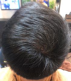 薄毛を改善