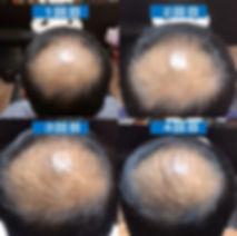 強髪ヘッドスパの経過観察